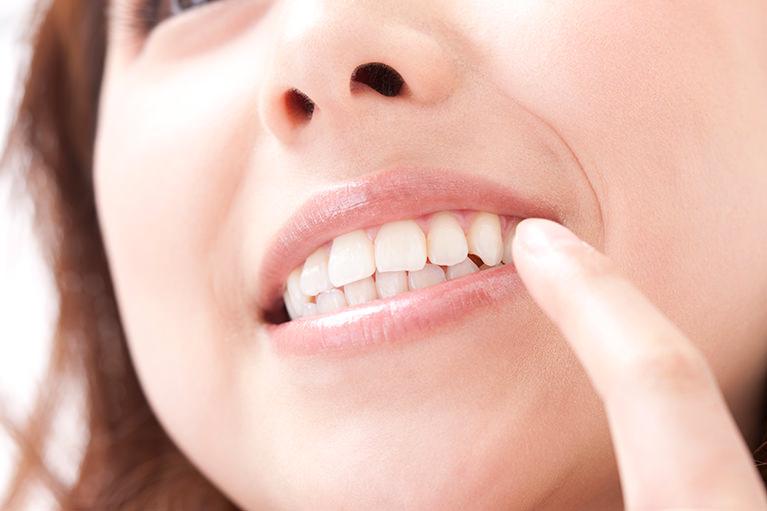 歯茎もきれいに